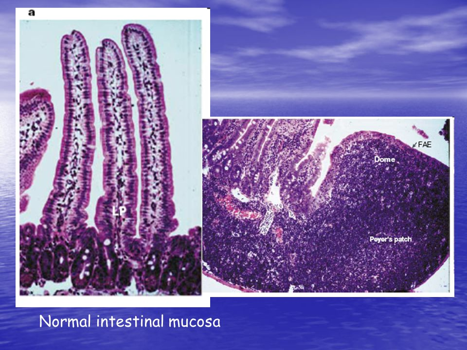 Normal intestinal mucosa