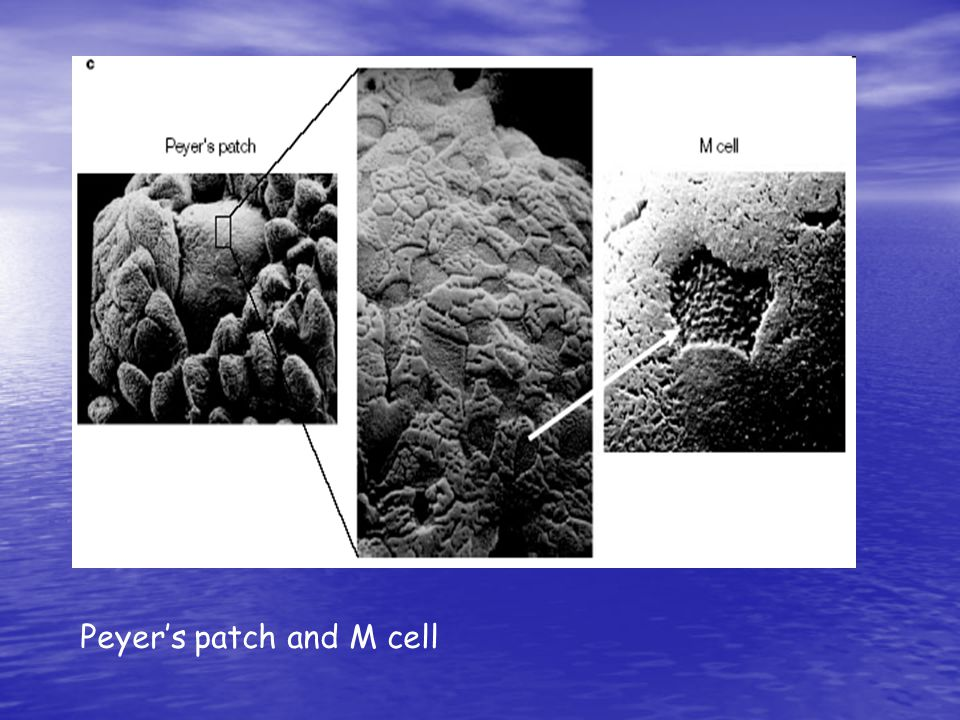 Peyer's patch and M cell
