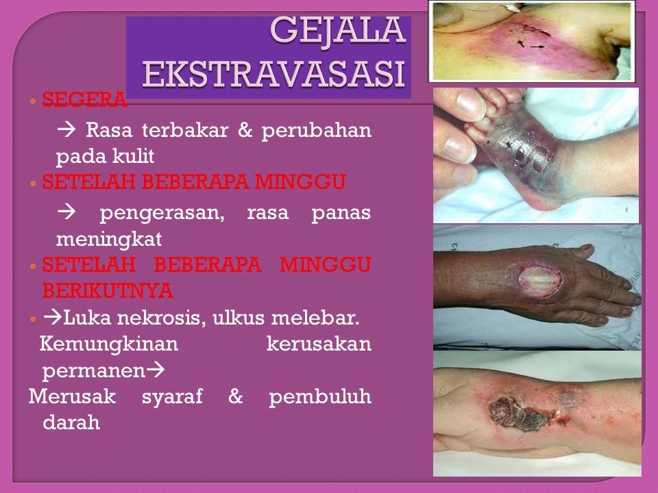 GEJALA EKSTRAVASASI SEGERA  Rasa terbakar & perubahan pada kulit