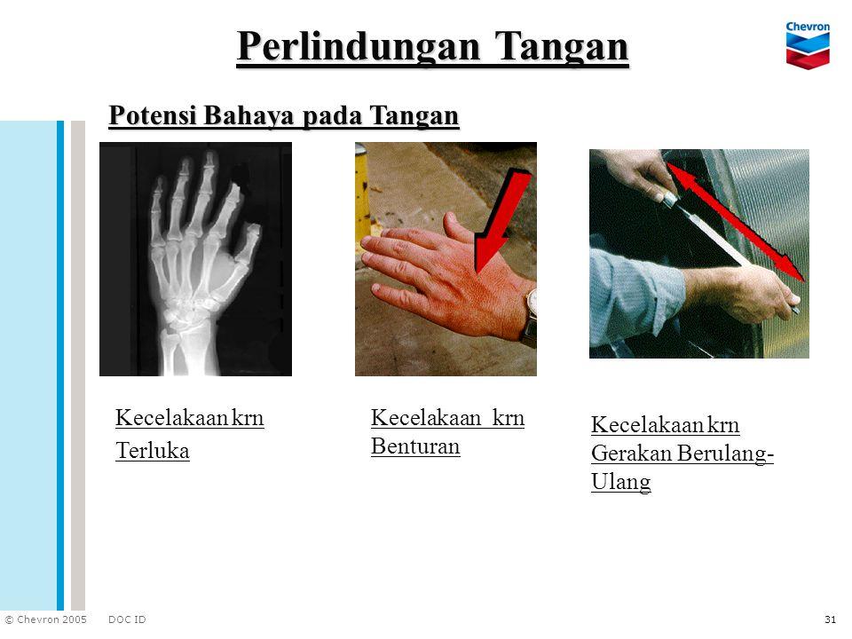 Perlindungan Tangan Potensi Bahaya pada Tangan Kecelakaan krn Terluka