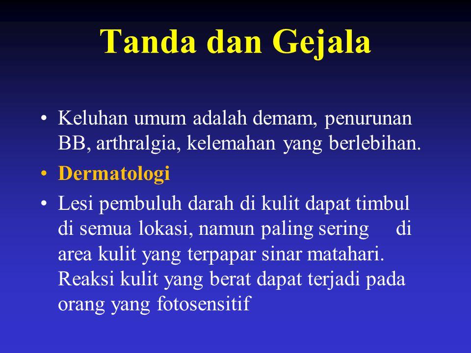 Tanda dan Gejala Keluhan umum adalah demam, penurunan BB, arthralgia, kelemahan yang berlebihan. Dermatologi.