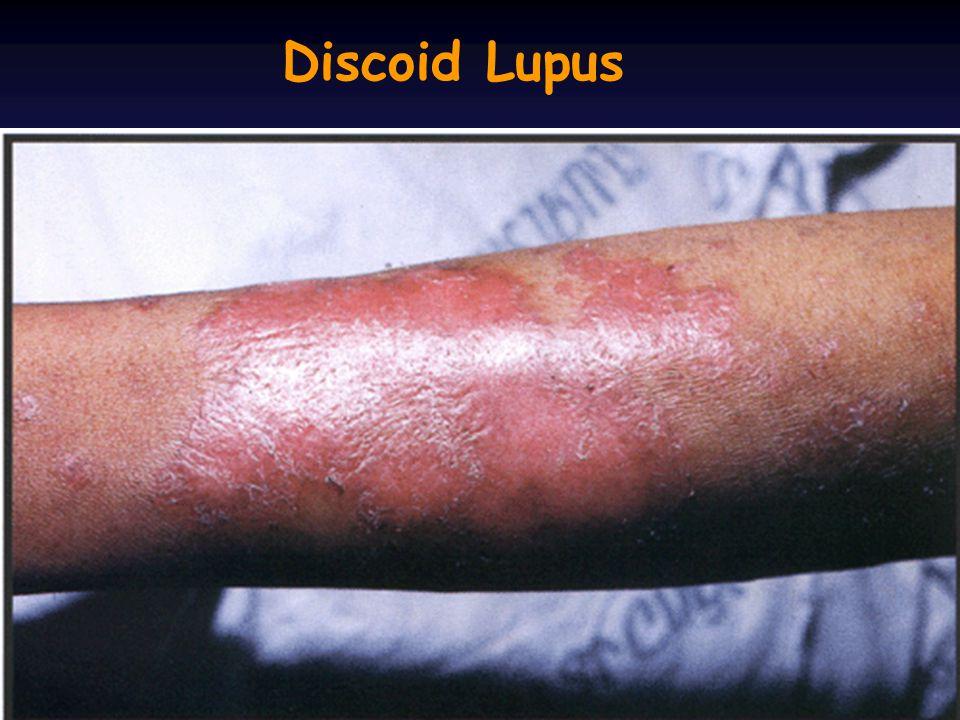 Discoid Lupus