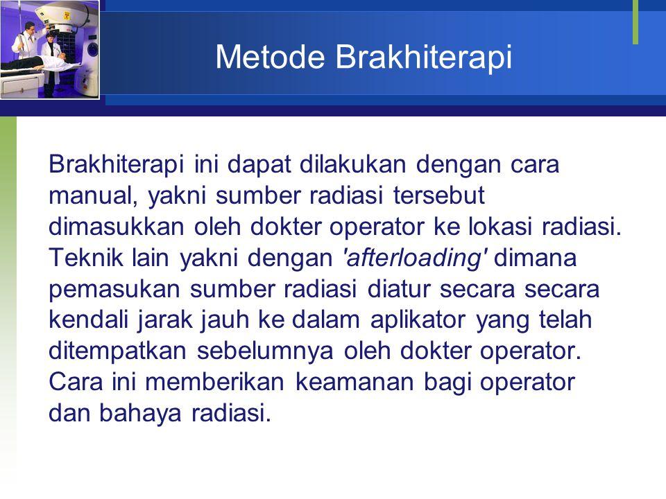 Metode Brakhiterapi