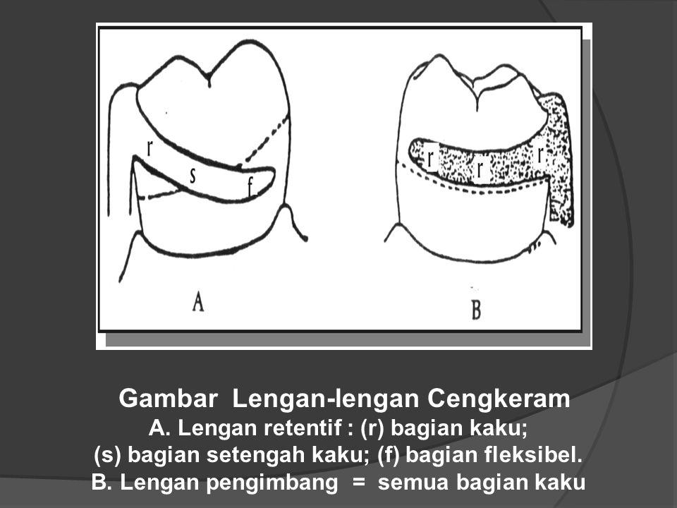 Gambar Lengan-lengan Cengkeram A. Lengan retentif : (r) bagian kaku;