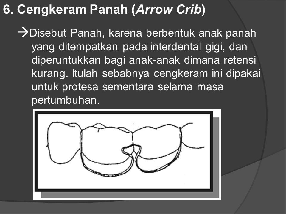 6. Cengkeram Panah (Arrow Crib)