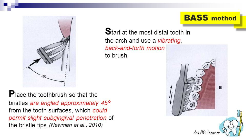 BASS method Start at the most distal tooth in the arch and use a vibrating, back-and-forth motion. to brush.