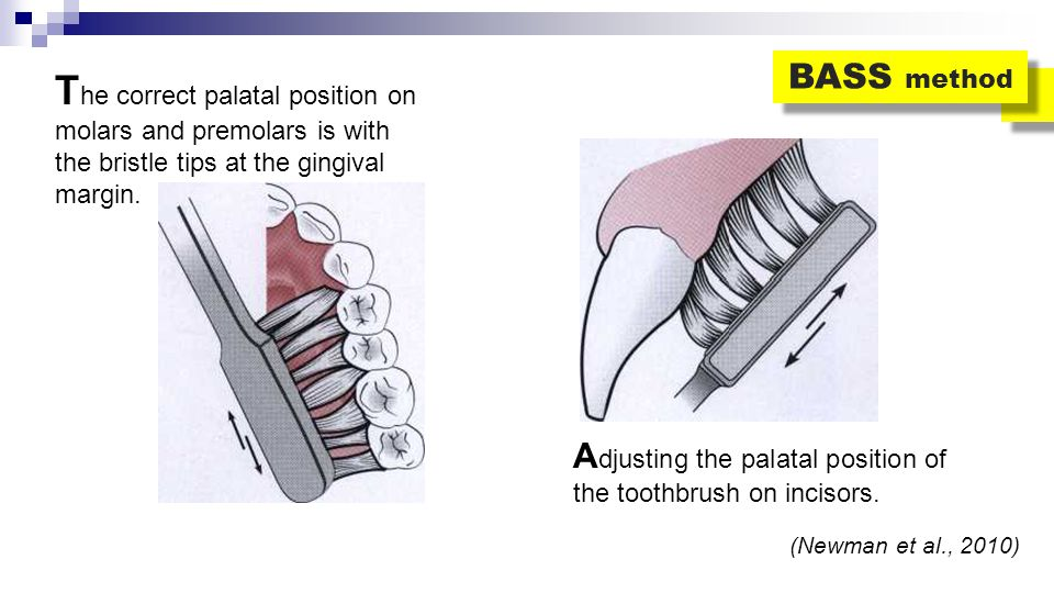 BASS method The correct palatal position on molars and premolars is with the bristle tips at the gingival margin.