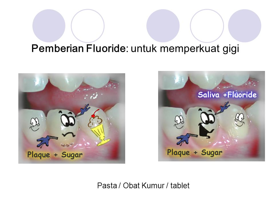 Pemberian Fluoride: untuk memperkuat gigi