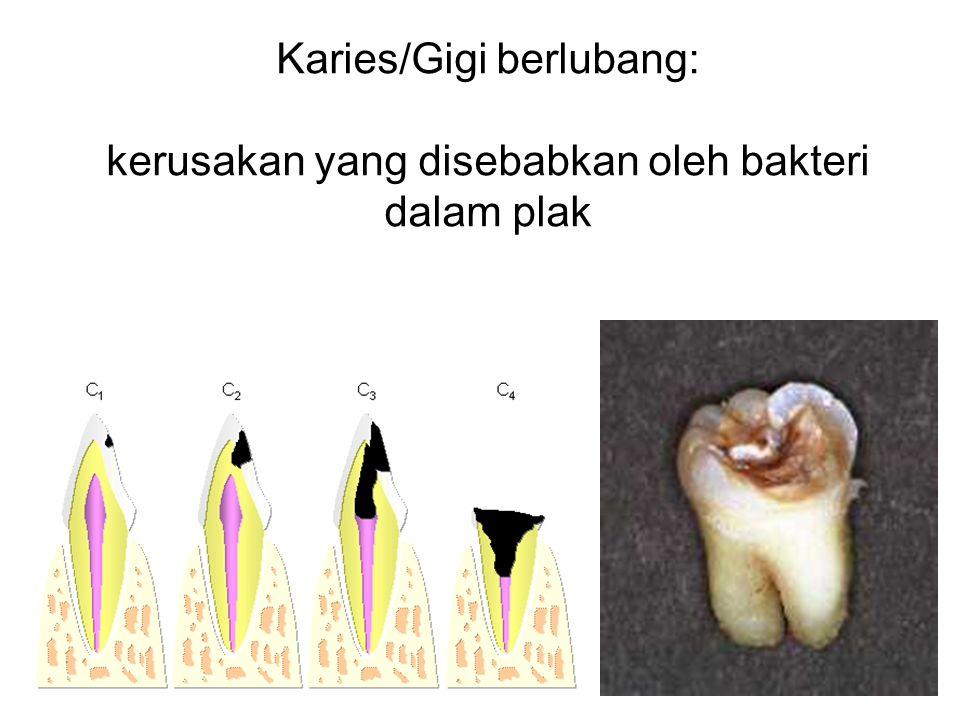 Karies/Gigi berlubang:
