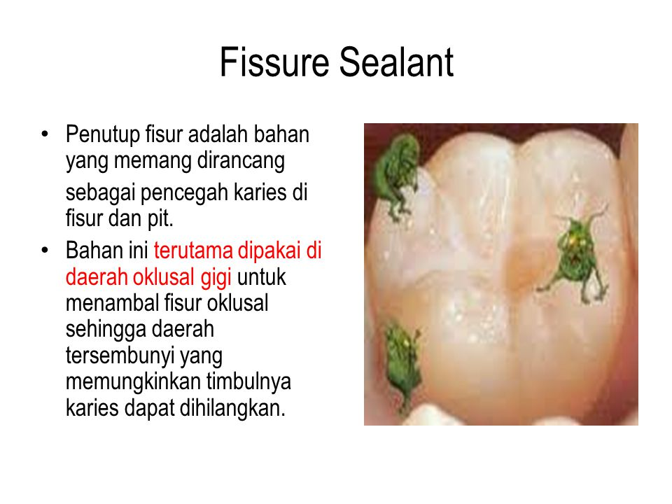 Fissure Sealant Penutup fisur adalah bahan yang memang dirancang