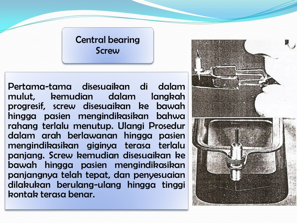 Central bearing Screw