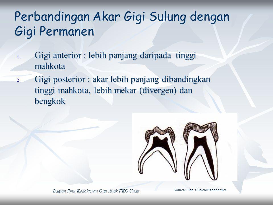Perbandingan Akar Gigi Sulung dengan Gigi Permanen