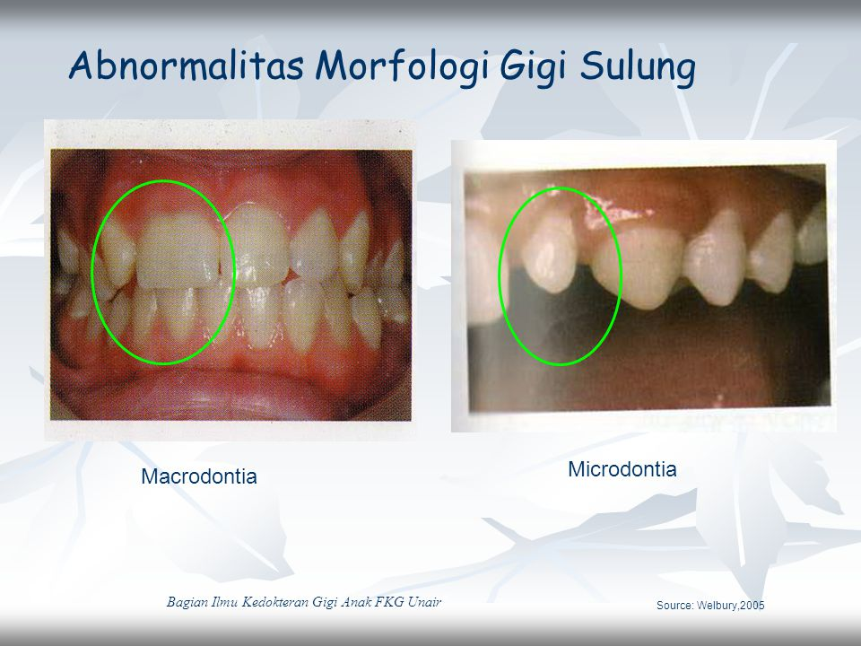 Abnormalitas Morfologi Gigi Sulung