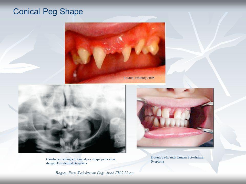 Conical Peg Shape Bagian Ilmu Kedokteran Gigi Anak FKG Unair
