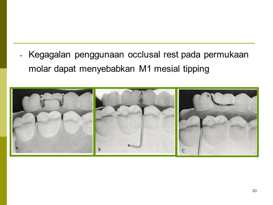 Kegagalan penggunaan occlusal rest pada permukaan molar dapat menyebabkan M1 mesial tipping