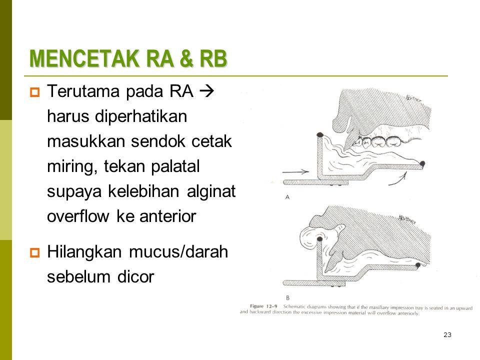 MENCETAK RA & RB Terutama pada RA  harus diperhatikan masukkan sendok cetak miring, tekan palatal supaya kelebihan alginat overflow ke anterior.