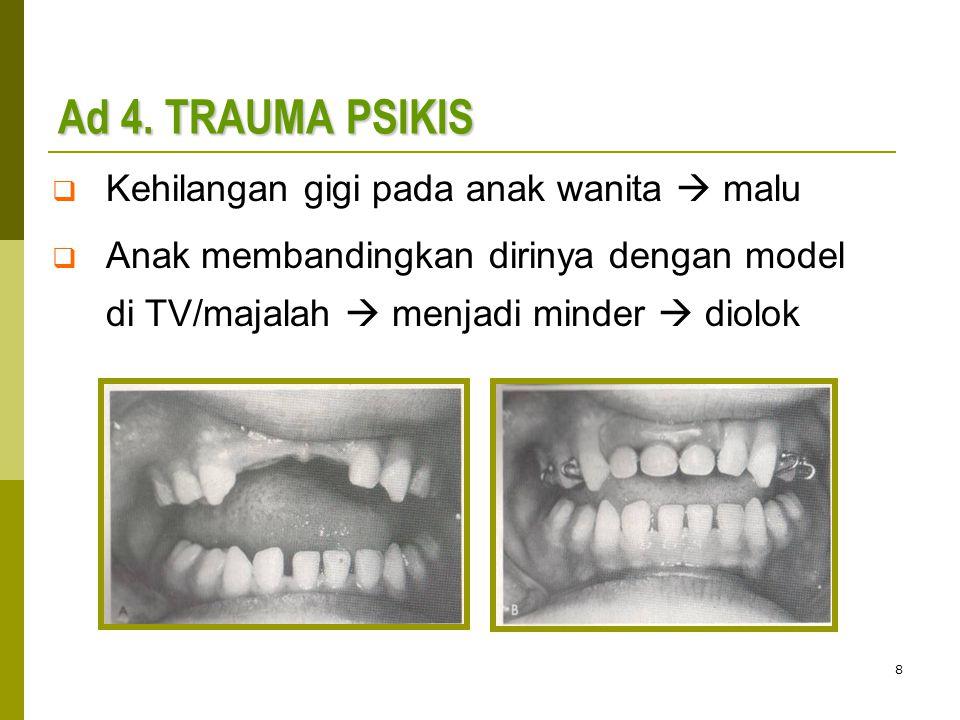 Ad 4. TRAUMA PSIKIS Kehilangan gigi pada anak wanita  malu