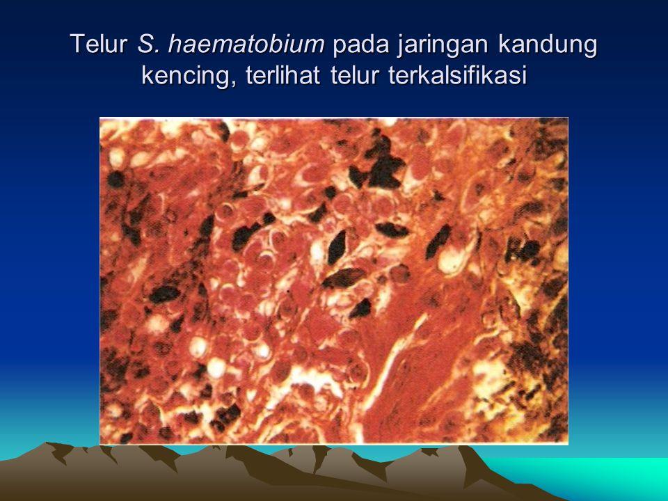 Telur S. haematobium pada jaringan kandung kencing, terlihat telur terkalsifikasi
