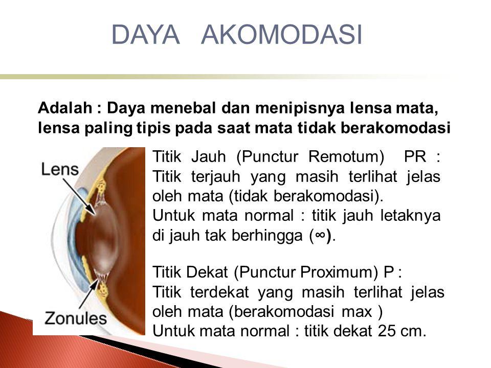 DAYA AKOMODASI Adalah : Daya menebal dan menipisnya lensa mata, lensa paling tipis pada saat mata tidak berakomodasi.