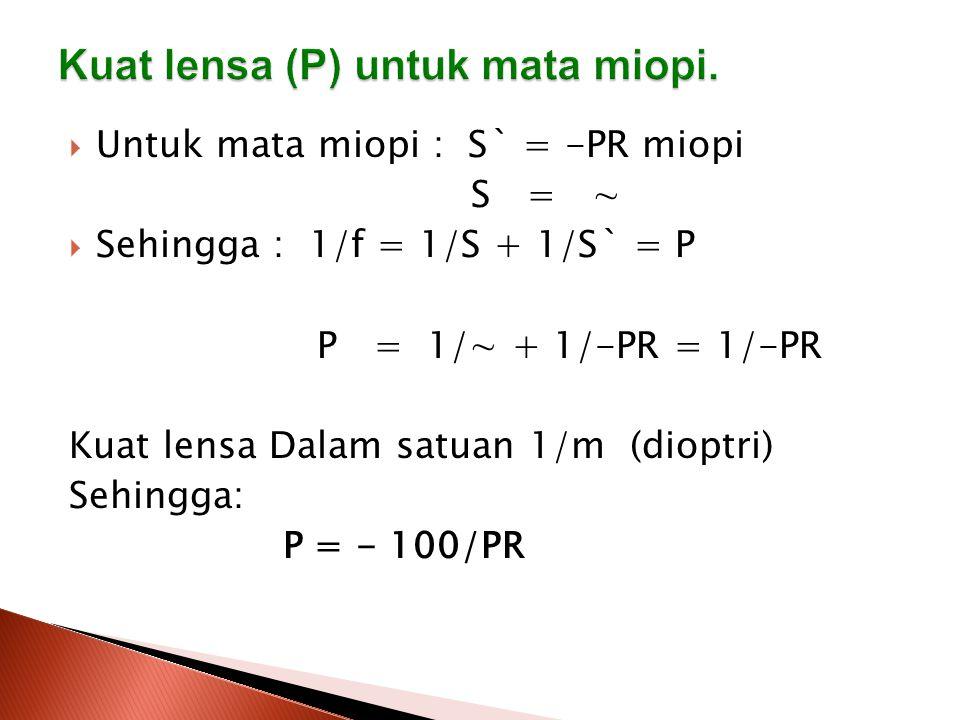 Kuat lensa (P) untuk mata miopi.