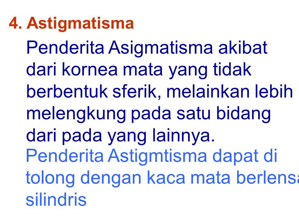 4. Astigmatisma