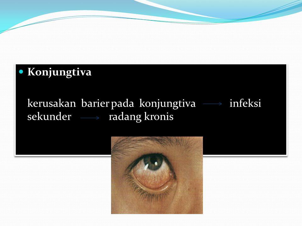 Konjungtiva kerusakan barier pada konjungtiva infeksi sekunder radang kronis
