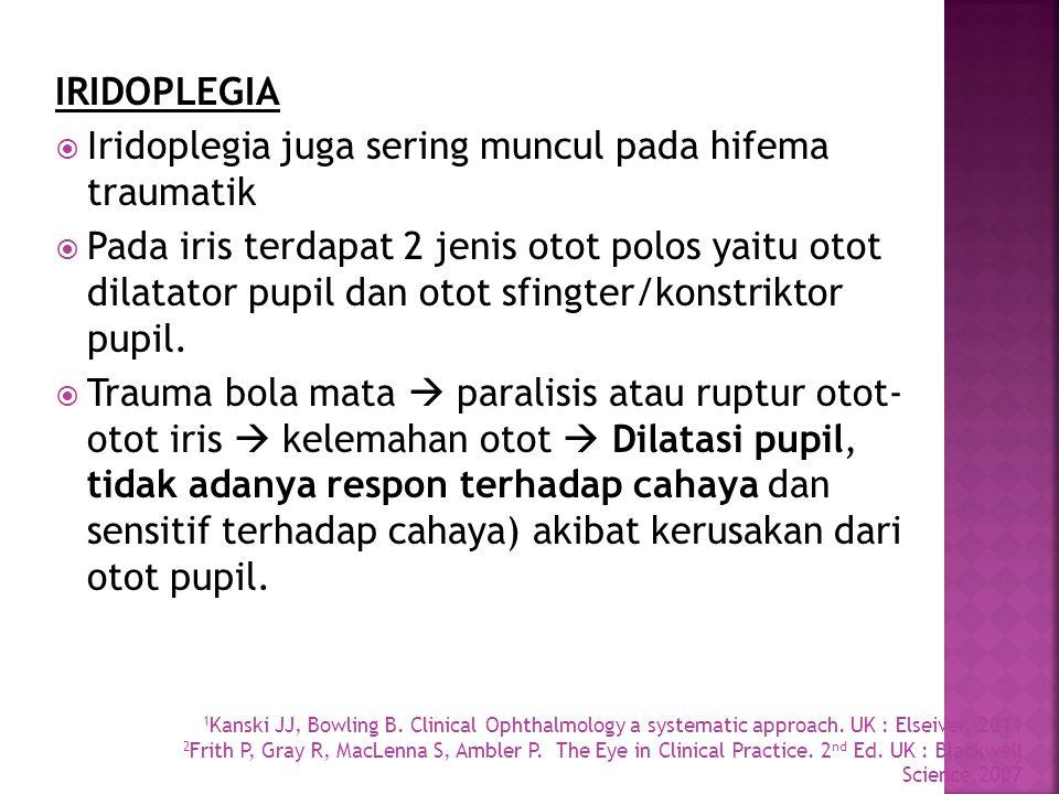 Iridoplegia juga sering muncul pada hifema traumatik