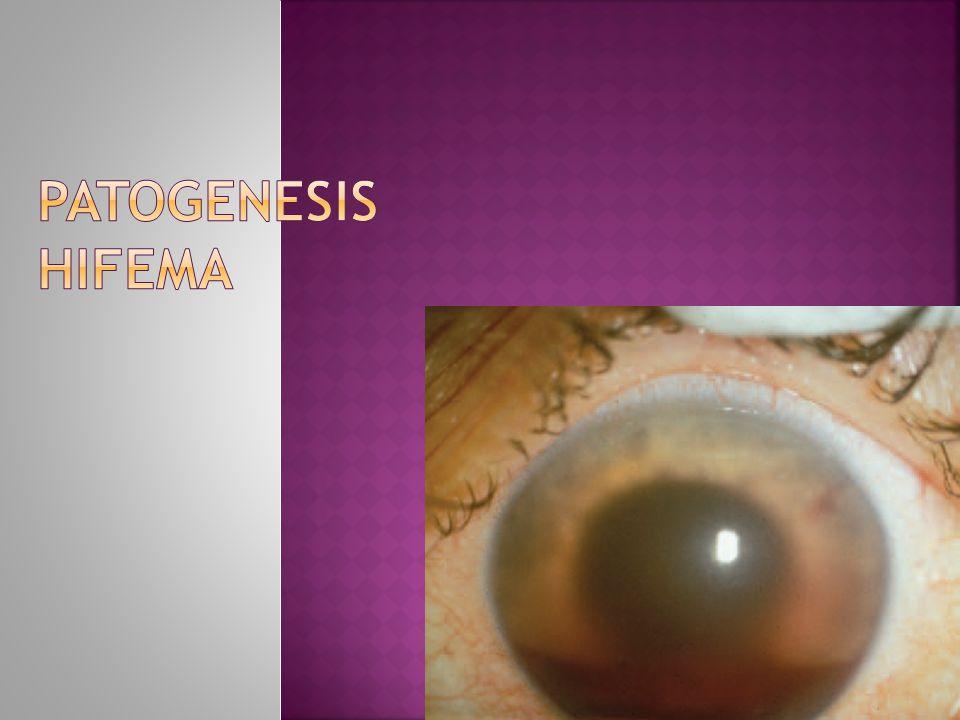 Patogenesis Hifema