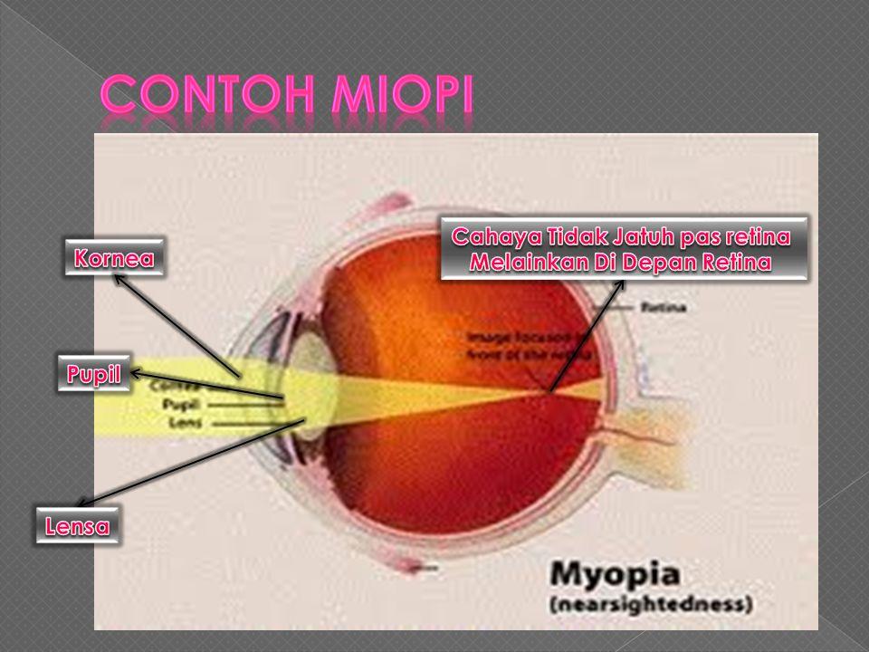 Cahaya Tidak Jatuh pas retina Melainkan Di Depan Retina