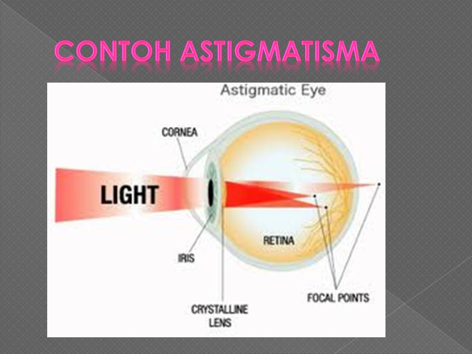 Contoh Astigmatisma