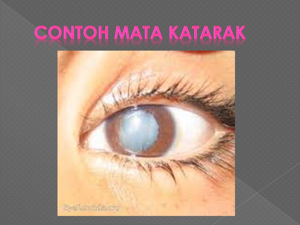Contoh Mata katarak