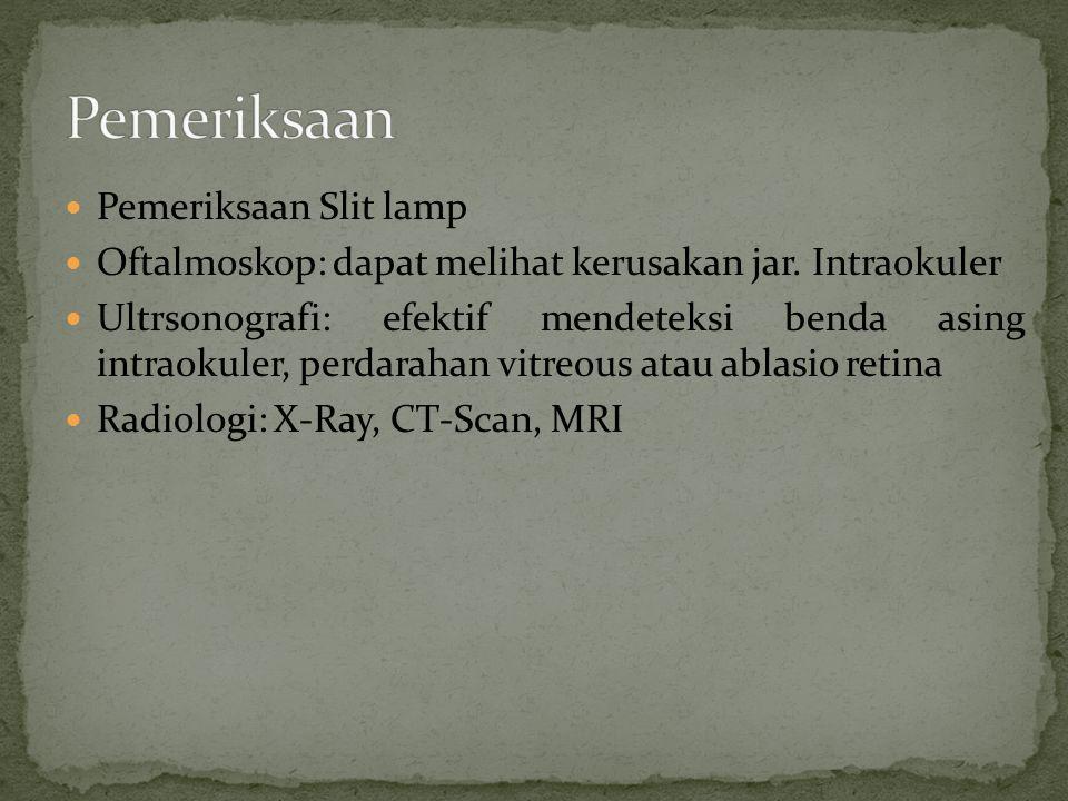 Pemeriksaan Pemeriksaan Slit lamp