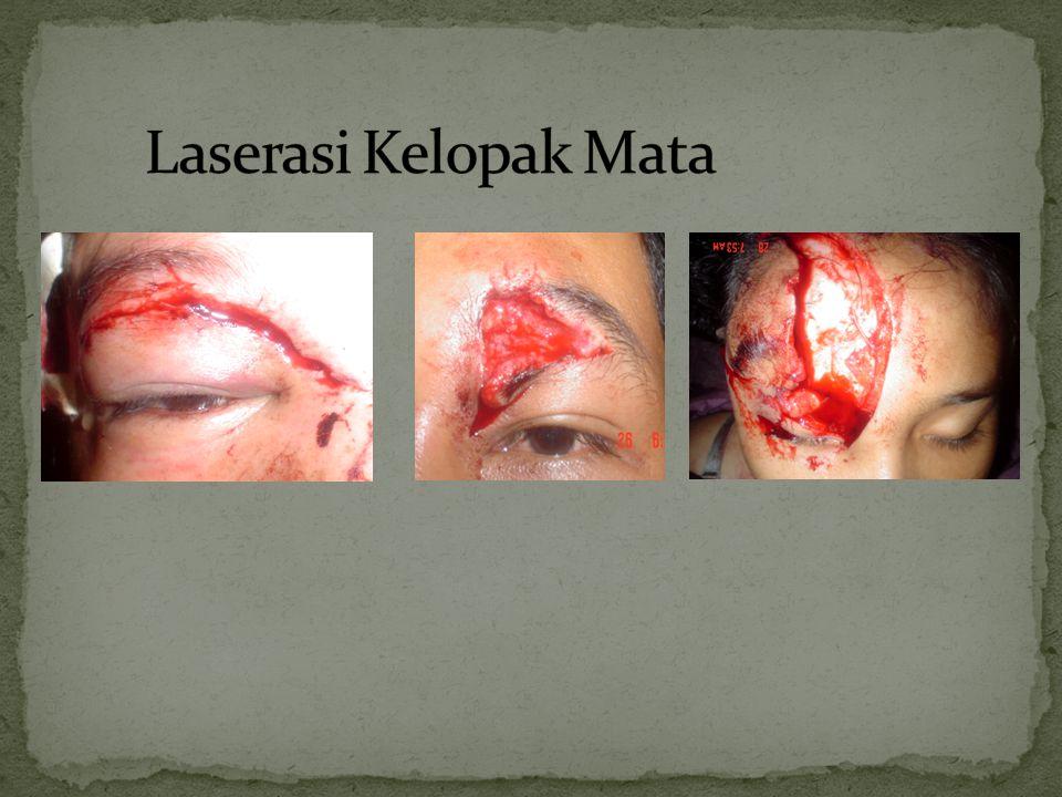 Laserasi Kelopak Mata