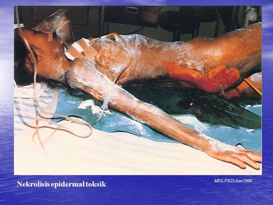 Gambar NET Nekrolisis epidermal toksik MDL/PKD/Jan/2006