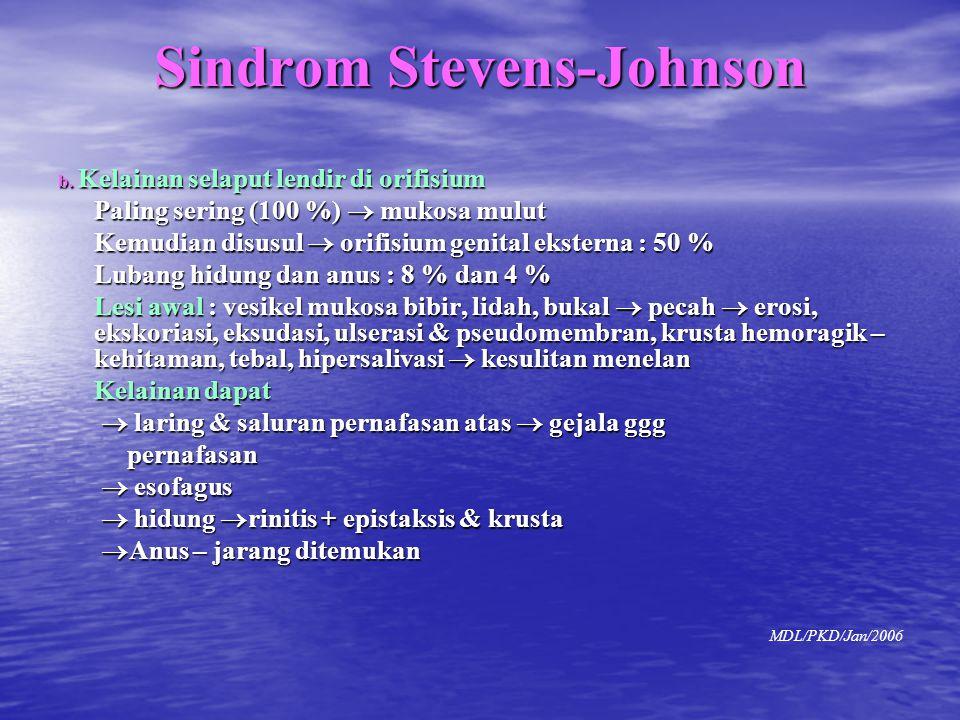 Sindrom Stevens-Johnson