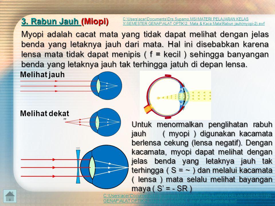 3. Rabun Jauh (Miopi)