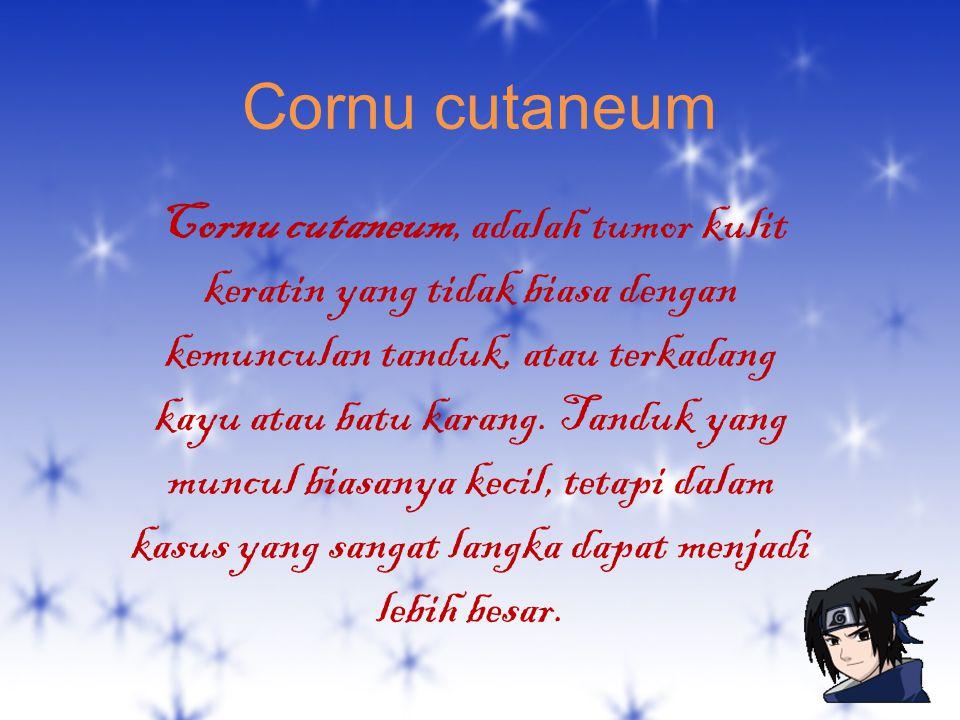 Cornu cutaneum