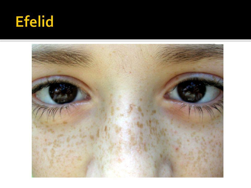 Efelid