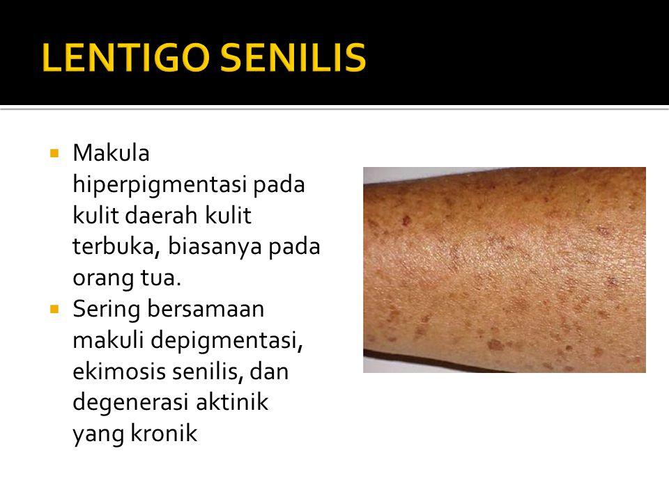 LENTIGO SENILIS Makula hiperpigmentasi pada kulit daerah kulit terbuka, biasanya pada orang tua.