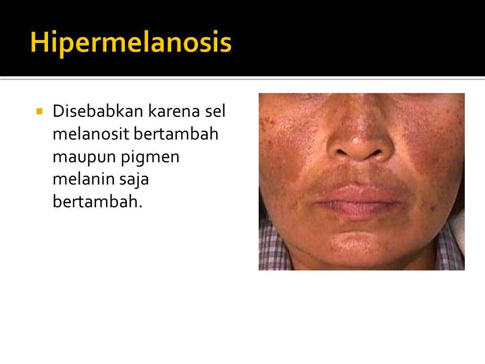 Hipermelanosis Disebabkan karena sel melanosit bertambah maupun pigmen melanin saja bertambah.