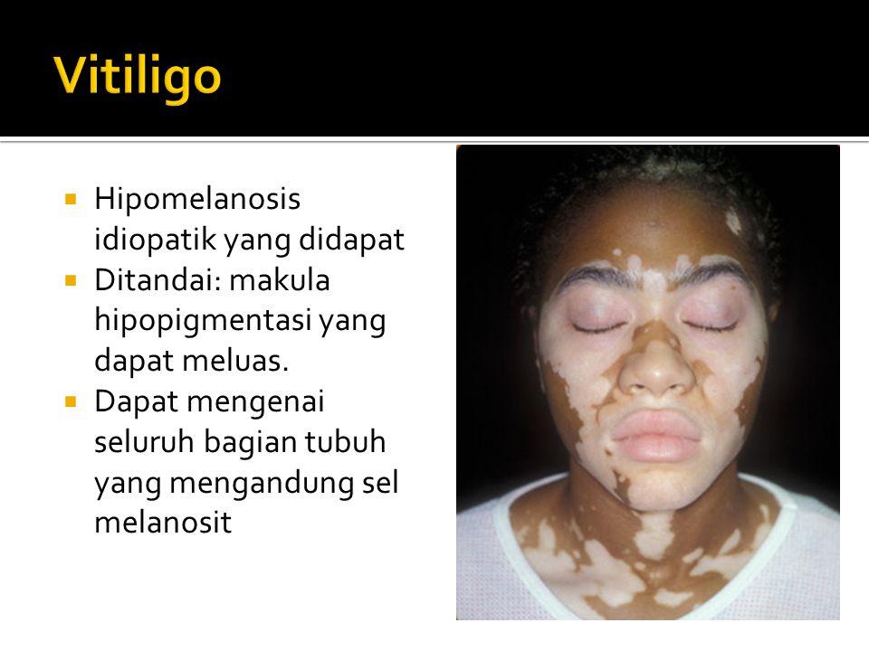 Vitiligo Hipomelanosis idiopatik yang didapat