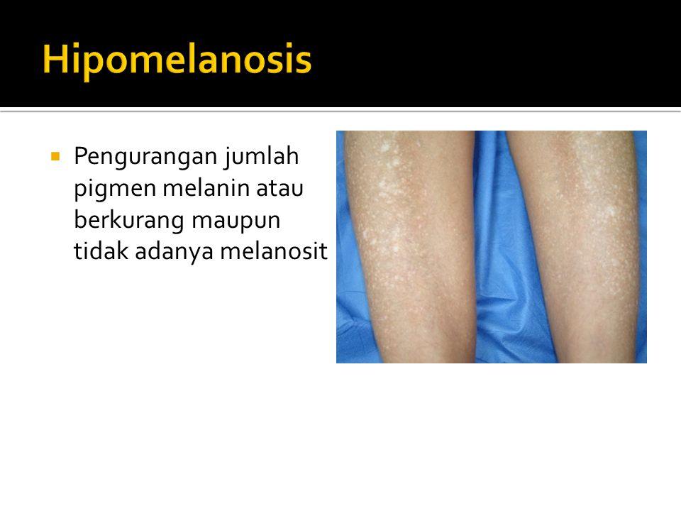 Hipomelanosis Pengurangan jumlah pigmen melanin atau berkurang maupun tidak adanya melanosit