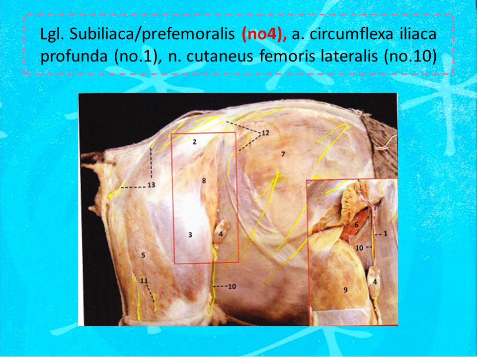 Lgl. Subiliaca/prefemoralis (no4), a. circumflexa iliaca profunda (no