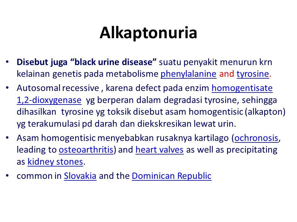 Alkaptonuria Disebut juga black urine disease suatu penyakit menurun krn kelainan genetis pada metabolisme phenylalanine and tyrosine.
