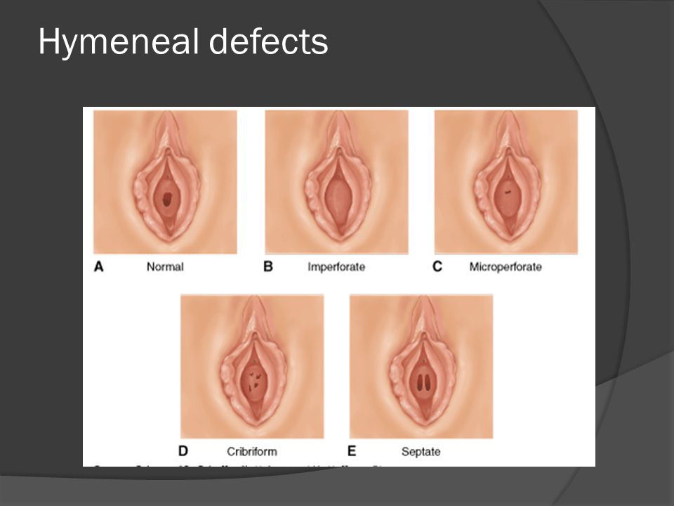 Hymeneal defects