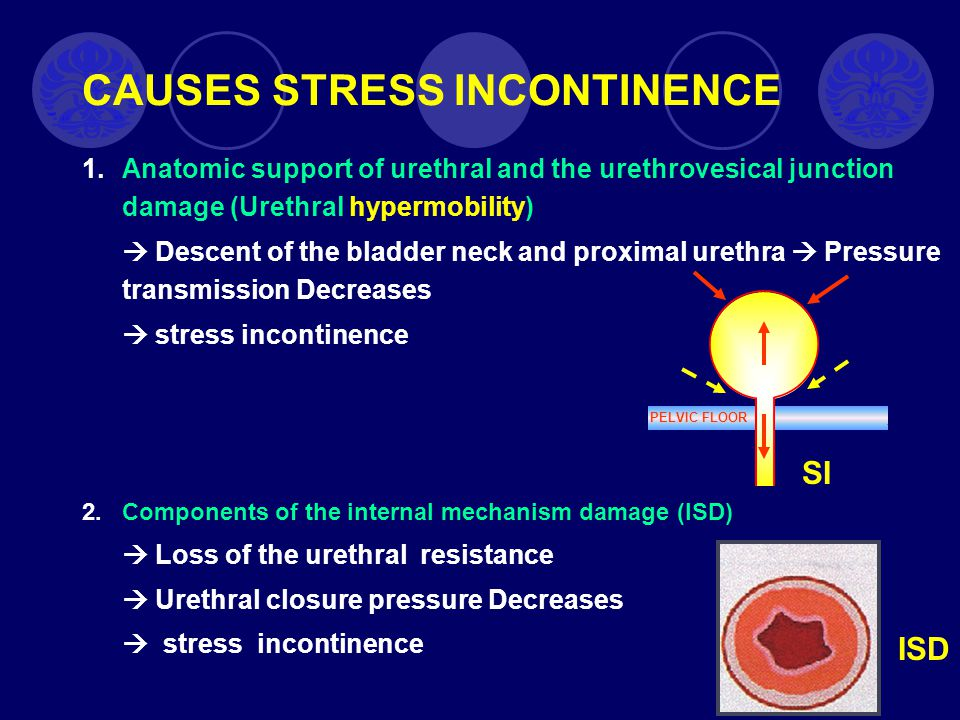 CAUSES STRESS INCONTINENCE