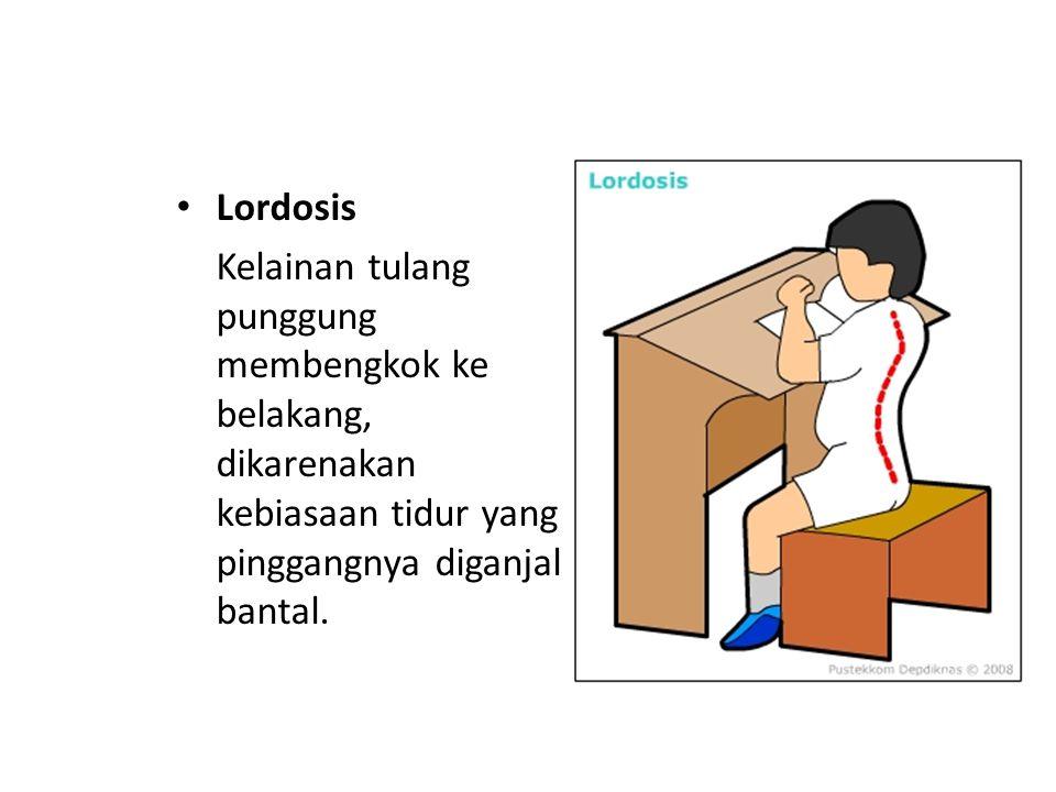Lordosis Kelainan tulang punggung membengkok ke belakang, dikarenakan kebiasaan tidur yang pinggangnya diganjal bantal.