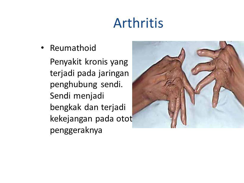 Arthritis Reumathoid.