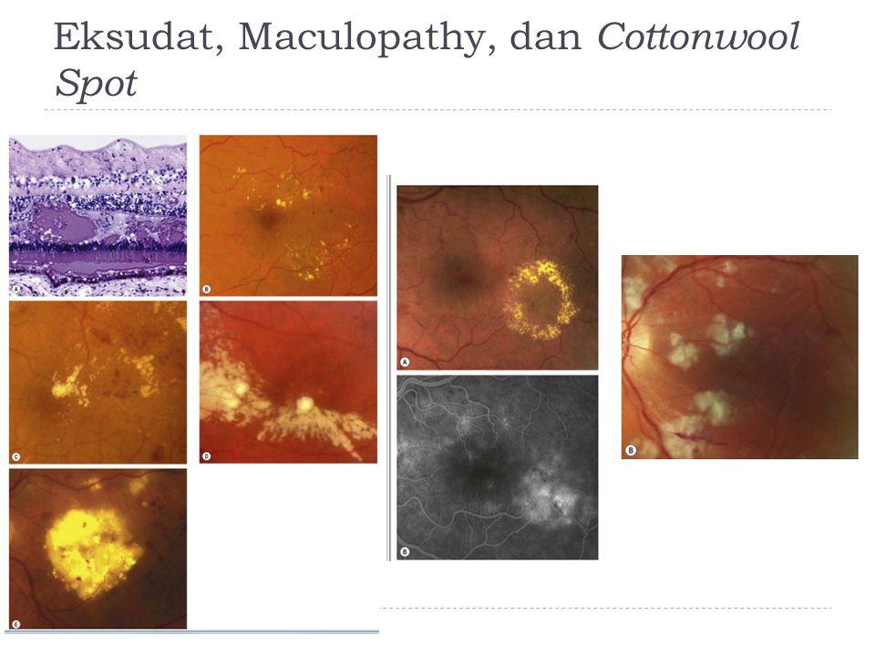 Eksudat, Maculopathy, dan Cottonwool Spot