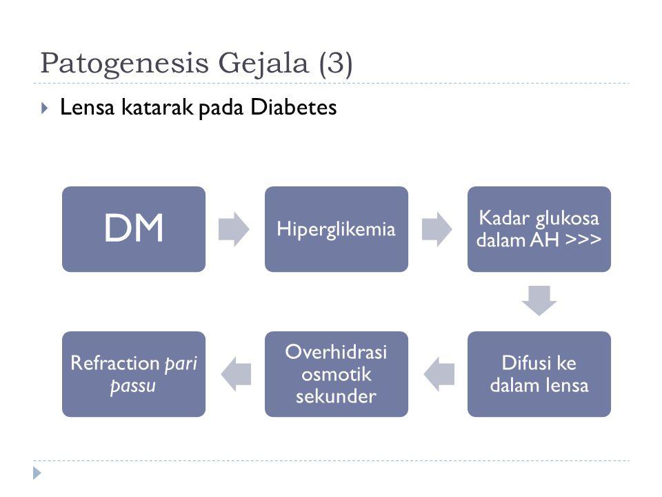 DM Patogenesis Gejala (3) Lensa katarak pada Diabetes Hiperglikemia